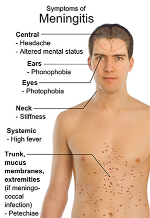 1014_TheCity_meningitis